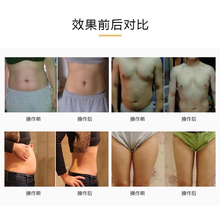 美体减肥仪器厂家