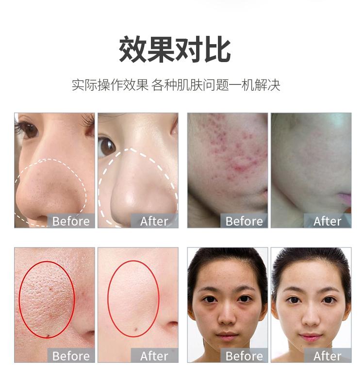 使用云端皮肤综合管理仪的前后效果对比