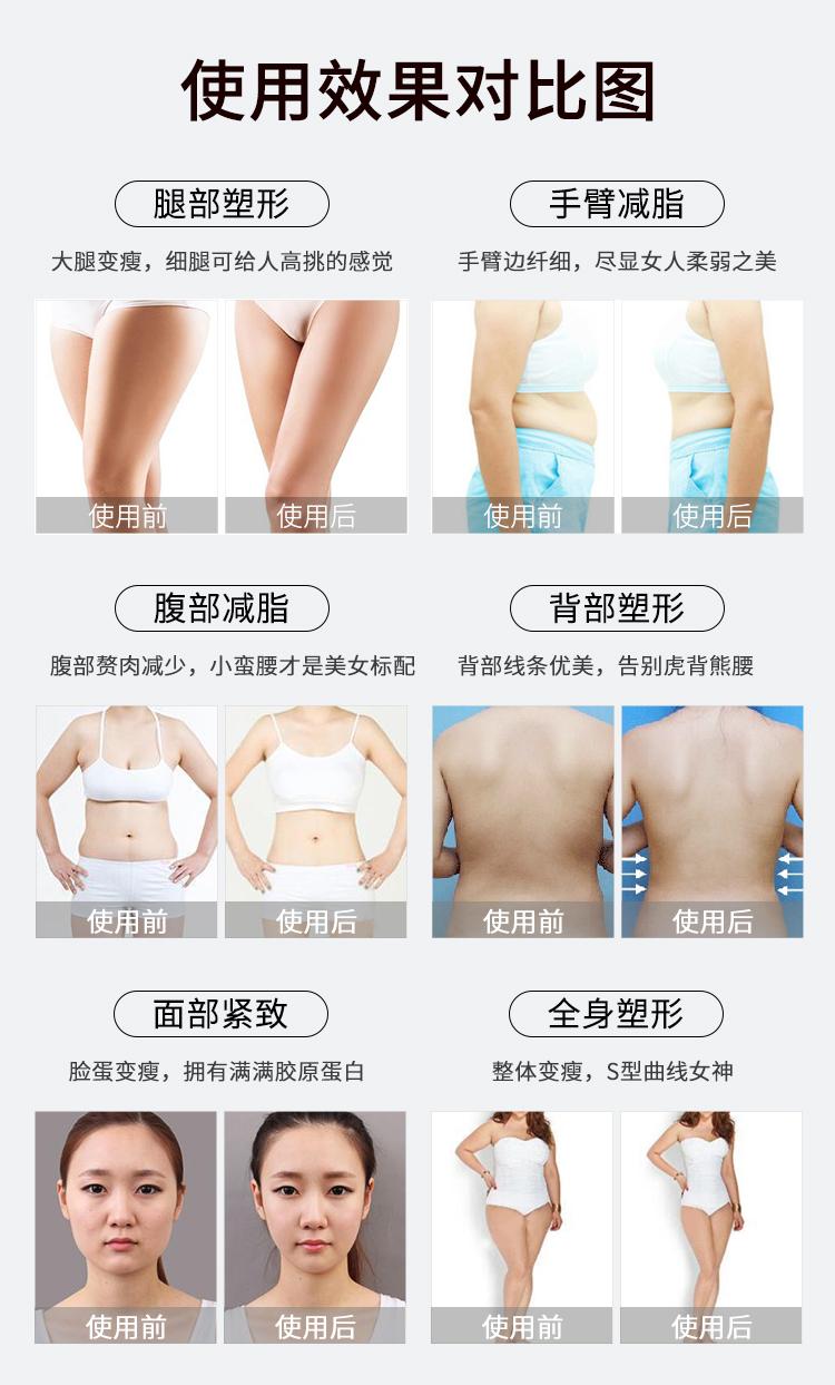 脂力瘦减肥仪使用前后效果对比